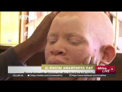 Albinism day in Nigeria: Local foundation sensitizes public on associated stigma