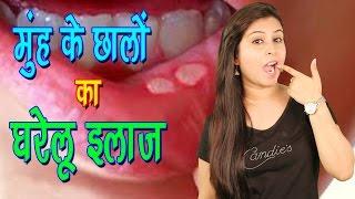 मुँह के छालों का घरेलू ईलाज Home Remedies For Mouth Ulcers | Muh Ke Chaale Ka Desi Ilaj - Health