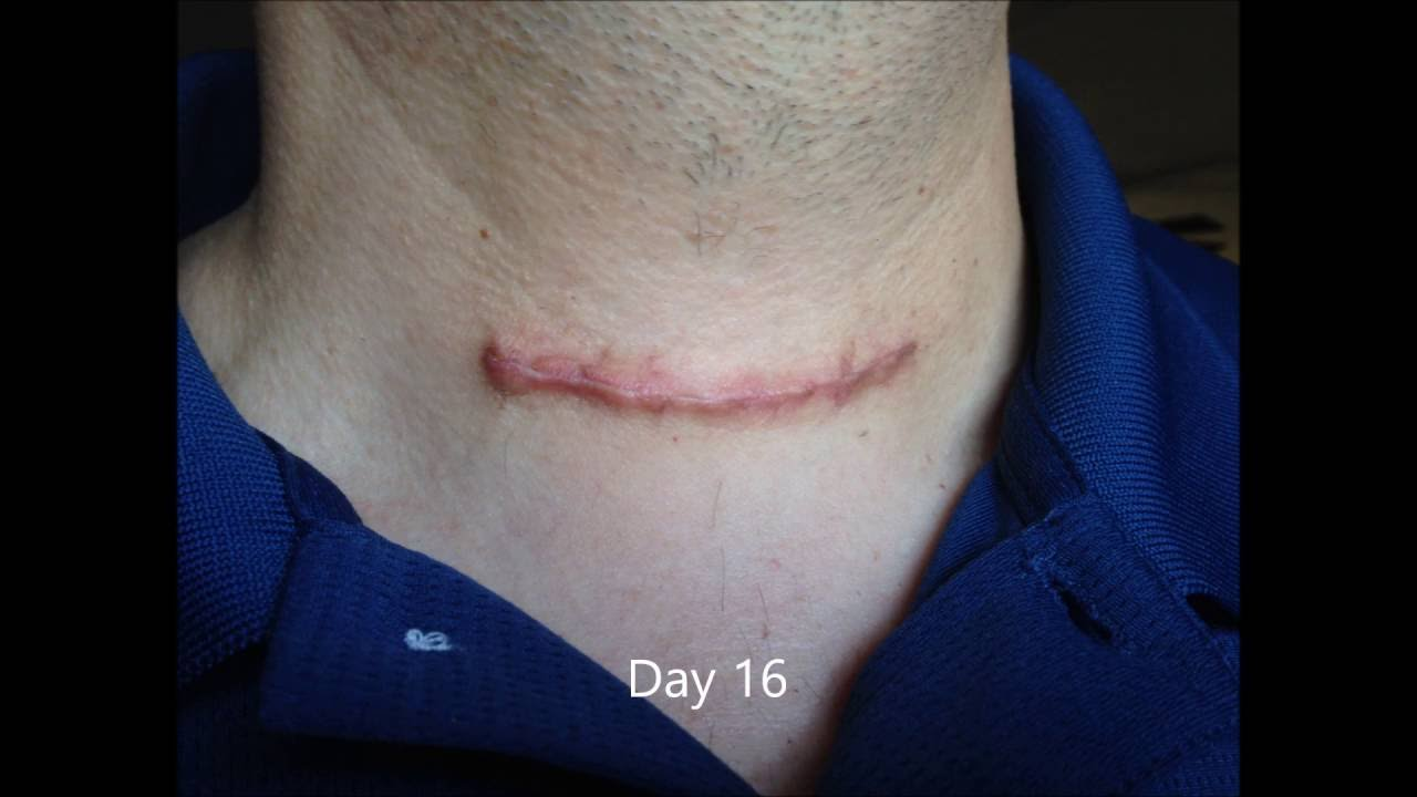 thyroidectomy scar first 20 days youtube