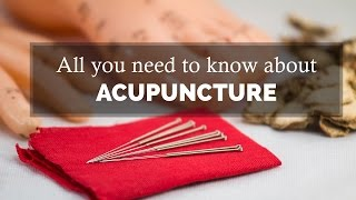 Acupuncture Treatment - All you need to know | Therapy