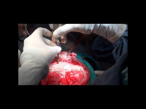 Киста шишковидной железы — симптомы, лечение, описание