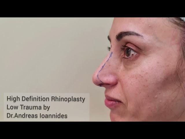#rhinoplasty #highdefinitionrhinoplasty #ρινοπλαστική #Ιωαννίδη #highdefinitionrhinoplastylowtrauma