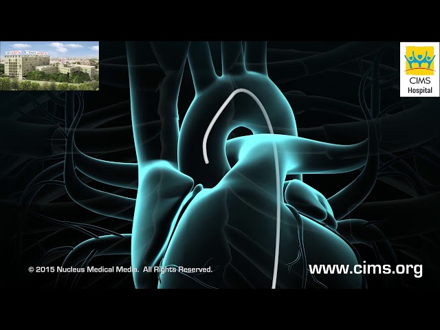 Coronary Angioplasty - CIMS Hospital