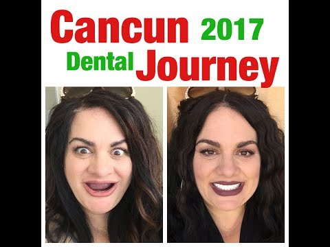 MY NEWEST CANCUN DENTAL JOURNEY | Oct 2017