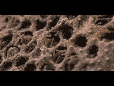 Trypophobia Test That Will Make You Uncomfortable Youtube