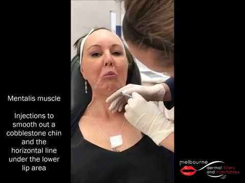 mentalis muscle injections melbourne dermal fillers and