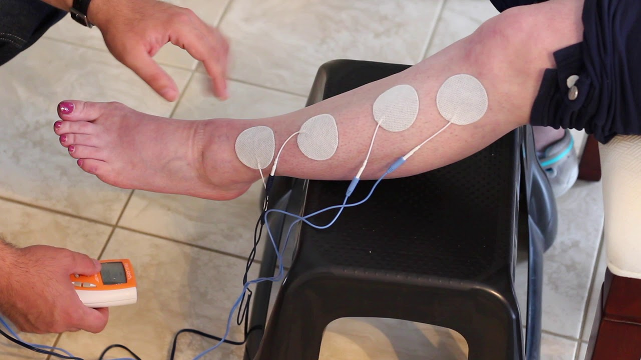 Electrical Stimulation for Stroke Patients: Benefits, Uses