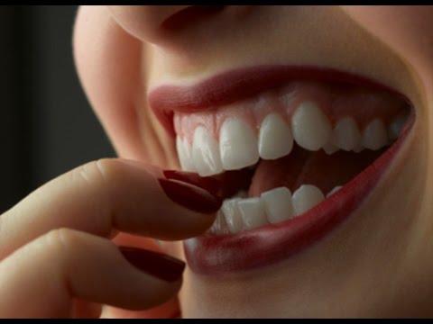 Как сделать чтобы зубы были белыми