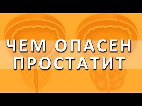 Простатит. Симптомы и признаки простатита. Хронический простатит