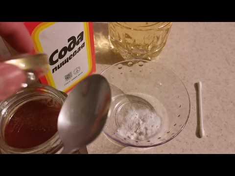 Как вылечить гайморит быстро в домашних условиях. 100%лечения