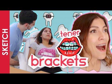 CUANDO TIENES BRACKETS / FRENOS - Katia Nabil