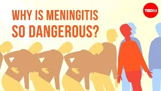 Why is meningitis so dangerous? - Melvin Sanicas