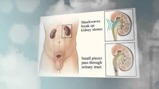 Kidney Stone Treatment Options Outlined