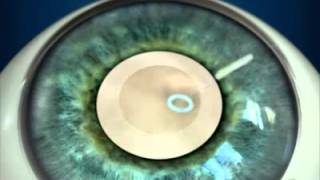Замена хрусталика глаза при катаракте
