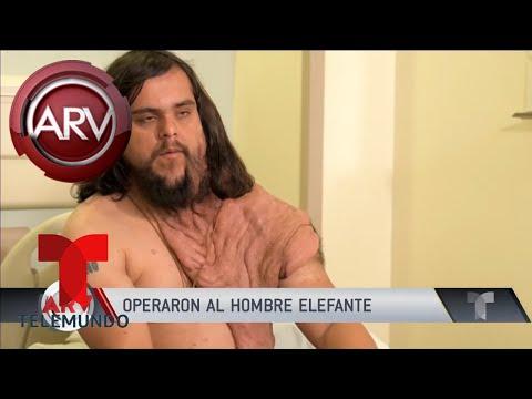 Super Martinez - Operan con Éxito a Hombre Elefante - Tumores en la Piel