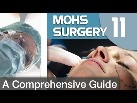 Preparing For Mohs Surgery