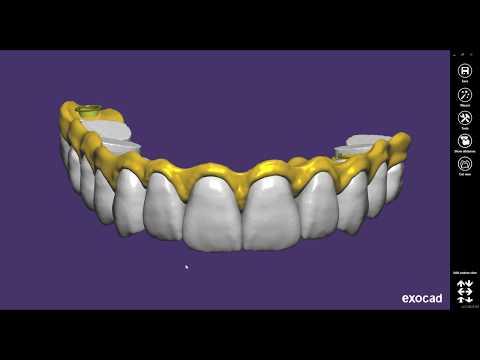 Protocolo dento gengival
