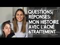 Questions/Réponses: Mon histoire avec l'acné et mon traitement cool laser