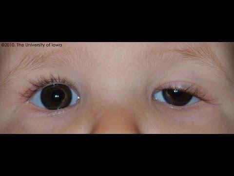احمرار تحت العين عند الاطفال