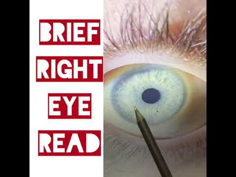 Right eye read - detox and detoxification