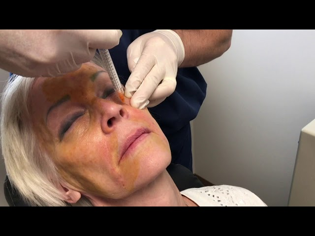 Liquid Facelift By Dr John Burroughs Colorado Springs Cosmetic Oculofacial Plastic Surgeon