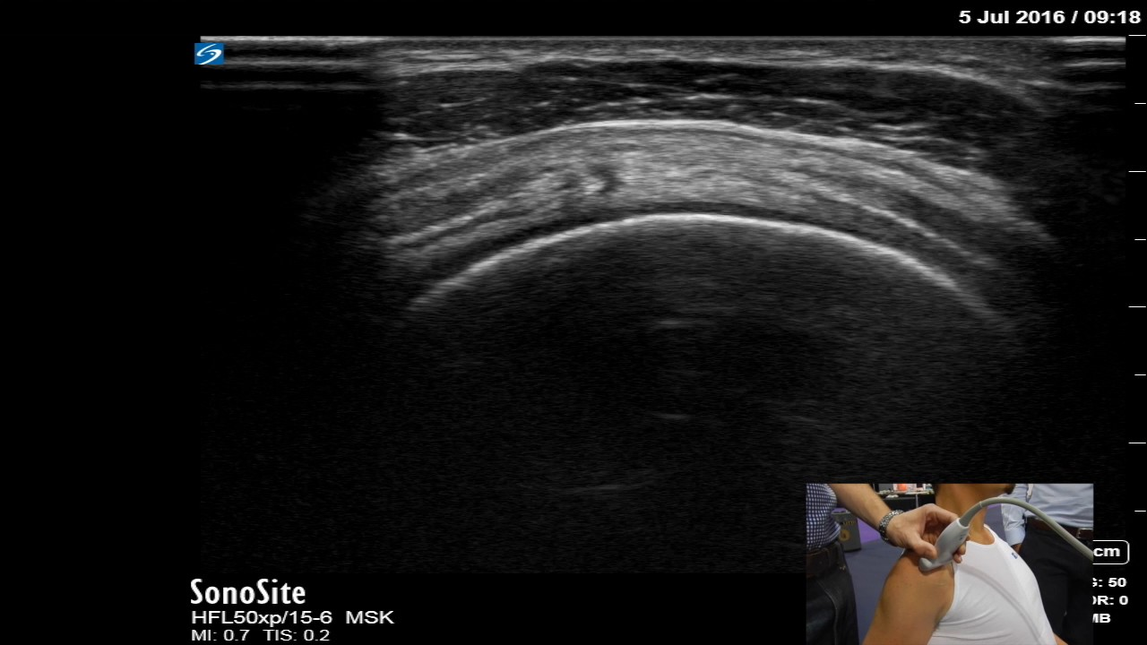 how to find supraspinatus tendon