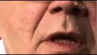 Botox #01 Part 4
