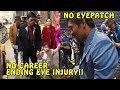 Download (PROOF) Manny Pacquiao does not have a career ending eye injury | Lakers vs Golden State