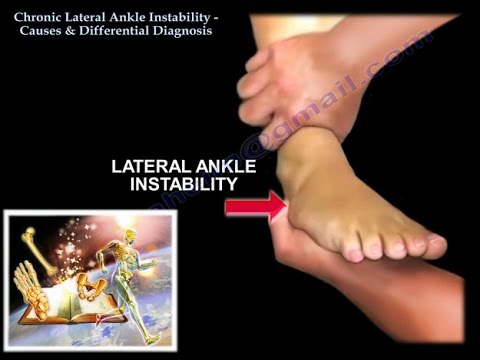 Chronic Lateral Ankle Instability - Everything You Need To Know - Dr. Nabil Ebraheim