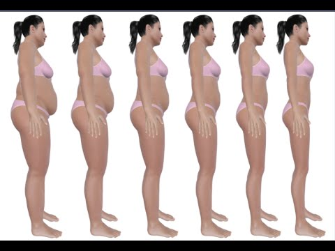 How to Prevent Weight Gain on Birth Control -  Birth Control Side Effects