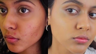 HOW I CLEARED MY ACNE & HYPER PIGMENTATION // ACNE.ORG BEFORE & AFTER | Skincare Routine 2017