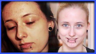 Akne nach Absetzen der Pille! Meine Geschichte