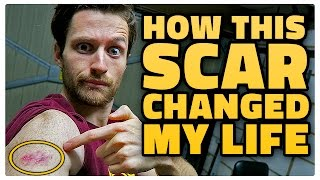 One of Spencer Owen's most viewed videos: HOW THIS SCAR CHANGED MY LIFE!