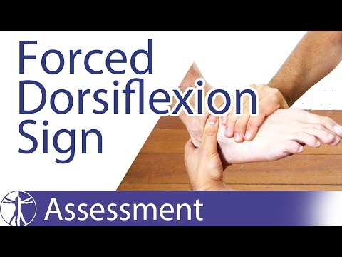 Forced Dorsiflexion Sign | Anterior Ankle Impingement