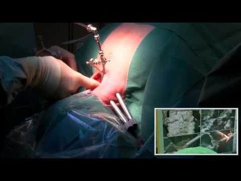 Cervical Spondylotic Myelopathy: Posterior decompression and fixation using rod-screw-system neon™