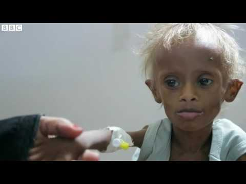 Children dying of starvation in Yemen's conflict