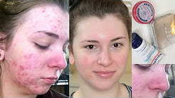 MY ACCUTANE JOURNEY! FINAL MONTH UPDATE! Side Effects & Black Heads!
