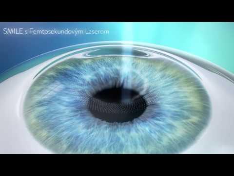 5a8c5bb85 ReLEx SMILE - Bezbolestná laserová operácia očí   relexsmile.sk
