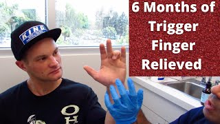 6 Months of Trigger Finger Released in No Time (REAL RESULTS!!!)