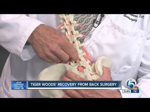 Tiger Woods' recovery from back surgery
