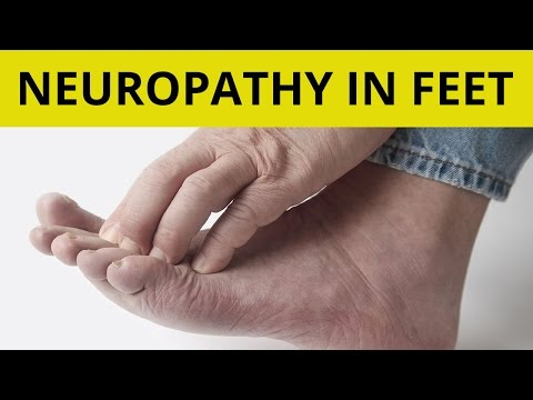 Peripheral Neuropathy Treatment | 9 Tips On How to Handle Neuropathy in Feet!