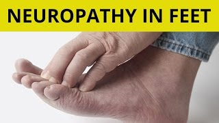 Peripheral Neuropathy Treatment   9 Tips On How to Handle Neuropathy in Feet!