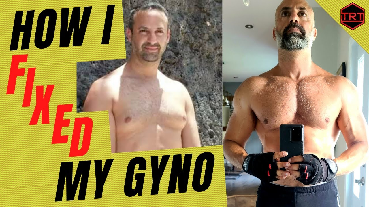 How I Fixed My Gynecomastia: How To Get Rid Of It With TRT (by Danny Bossa TRT)