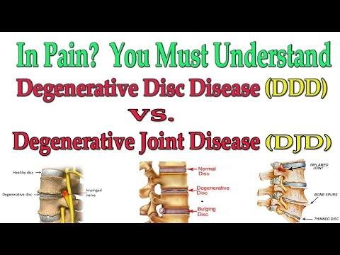 In Pain?  You Must Understand Degenerative Joint Disease vs Degenerative Disc Disease - Dr Mandell