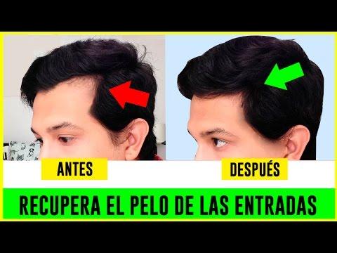COMO HACER CRECER EL CABELLO DE LAS ENTRADAS | RECUPERAR EL CABELLO | REMEDIOS CASEROS | AndyZaturno