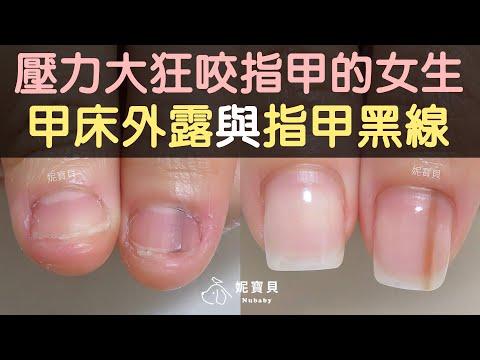 壓力大狂咬指甲的女生 甲床外露與指甲黑線矯正
