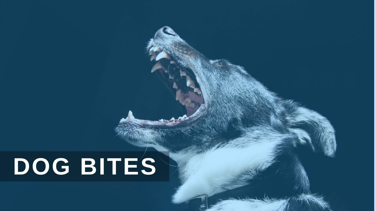 Understanding Dog Bite Liability • The Carlson Law Firm