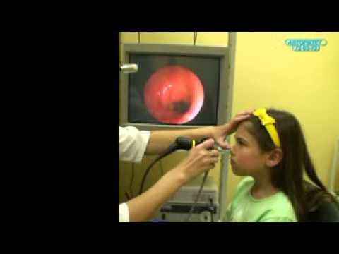 Как проверяют аденоиды у детей эндоскопом видео
