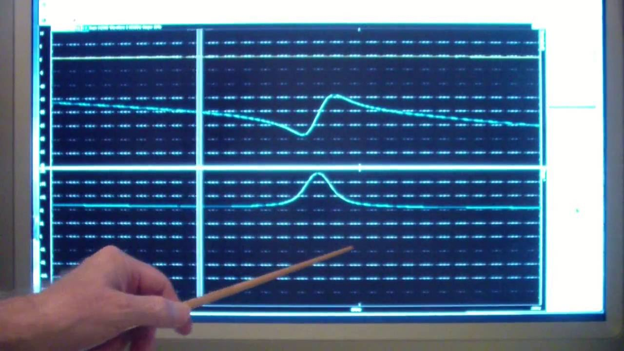 Ttt108 Analog Discovery 2 Colpitts Oscillator Youtube The Circuit Consists Of A