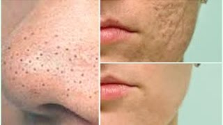 FAST AND EASY WAY TO GET RID OF LARGE PORES | GET YOUNGER, BRIGHTER, SKIN IN 7 DAYS |Khichi Beauty
